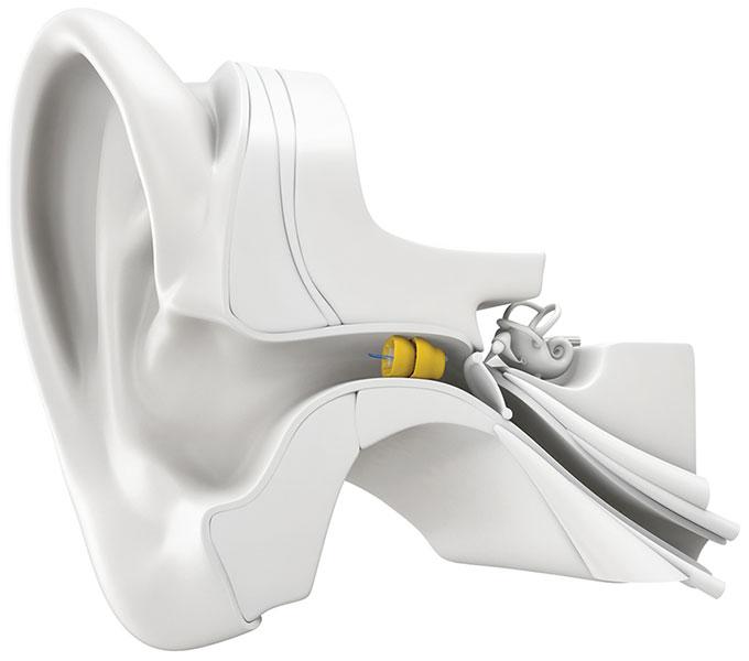 Lyric hearing aid costco