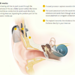 Bone Anchored hearing aids (BAHA) Who? How? Why?